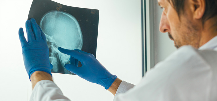 Common causes of traumatic brain injury